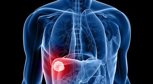 infusiones para la vesicula